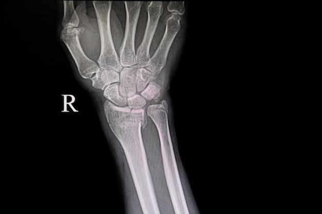 Film xray złamań kości nadgarstka