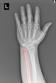 Filmowe prześwietlenie ręki złamaniem kości łokciowej.