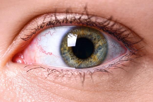 Fotografia makro oka z żółto-szarą tęczówką i naczynkami