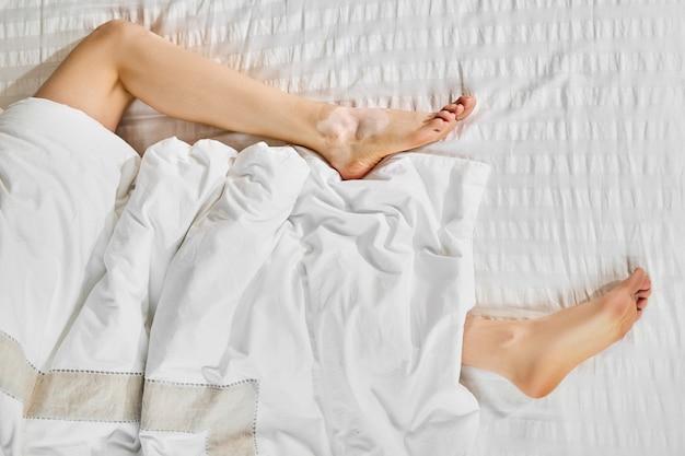 Gołe kobiece nogi z bielactwem na łóżku