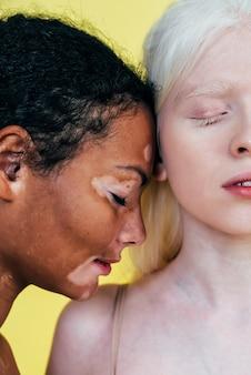 Grupa wieloetnicznych kobiet o różnym rodzaju skóry pozujących razem w studio