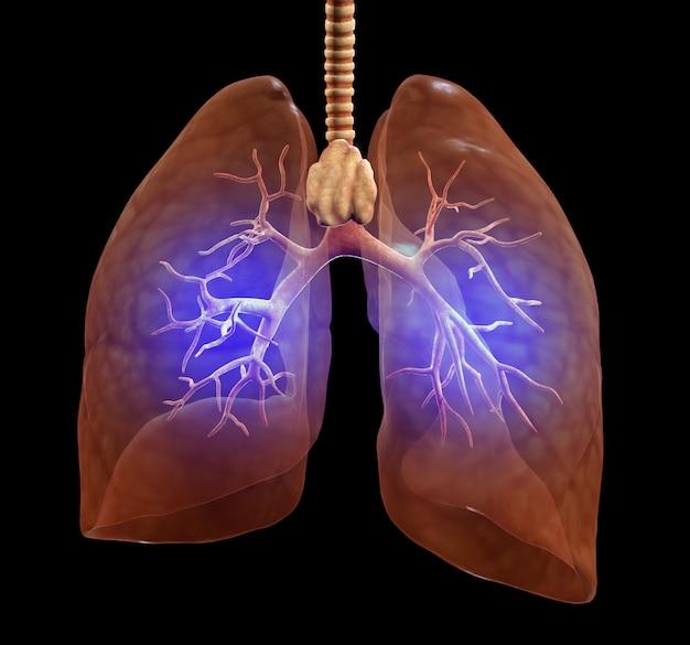 Gruźlica w płucach, 3d ilustracja
