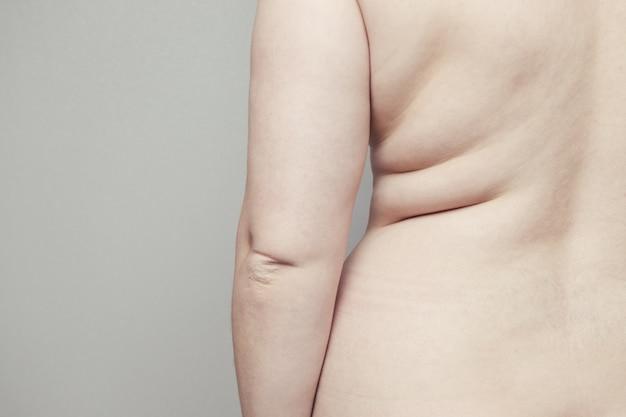 Grzbiet kobiecego nagiego ciała z fałdami na skórze. otyłość i choroba końcowa