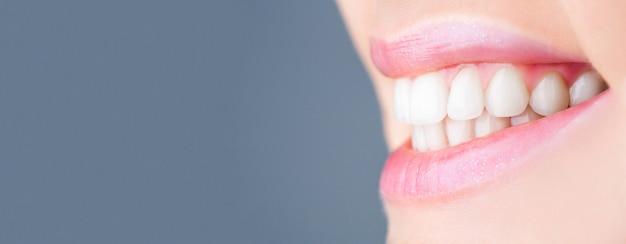 Idealne zdrowe zęby uśmiech kobiety. wybielanie zębów. koncepcja zdrowia zębów. procedura wybielania zębów. opieka dentystyczna. koncepcja stomatologii