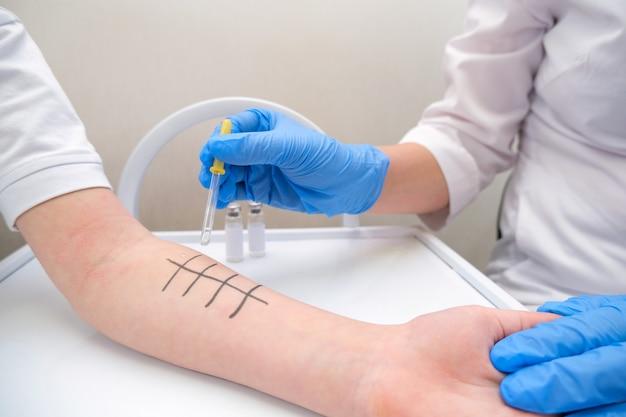 Immunolog robi test alergii na skórne nakłucie. zaczerwienienie i łuszczenie na ramieniu.