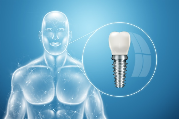 Implant dentystyczny, plakat informacyjny