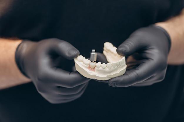 Implant dentystyczny. śruba implantu zęba dentysty. przyłóż model implantu implan do naprawy implantu i korony mostu.