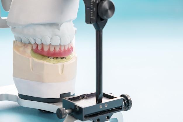 Implant dentystyczny zakończony i gotowy do użycia / łącznik tymczasowy na implancie dentystycznym