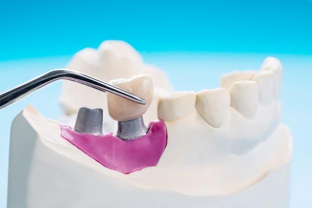 Implant protetyka lub proteza
