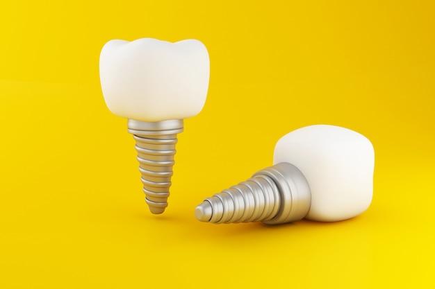 Implant zęba 3d.