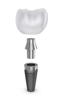 Implant zęba w rozmontowanej formie.