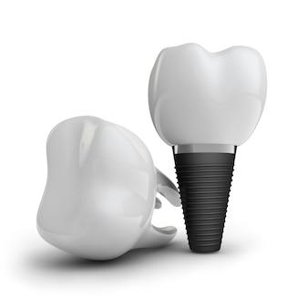 Implant zęba