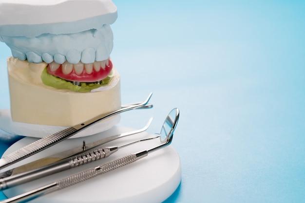 Implanty dentystyczne podtrzymywały overdenture na niebieskim tle.