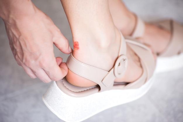 Kalus na skórze nóg kobiety. koncepcja opieki zdrowotnej i medycyny