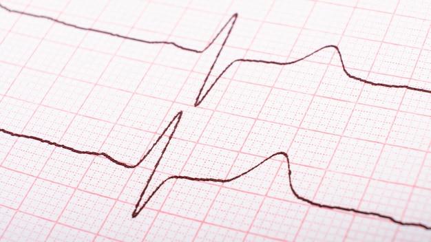 Kardiogram impulsów serca, koncepcja choroby hipertonicznej.