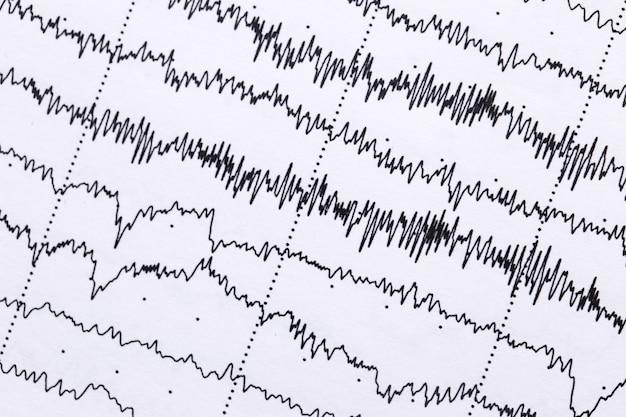 Kardiogram na kartce z bliska. tekstura fal pulsacyjnych.