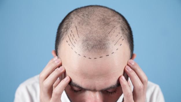 Kaukaski łysy mężczyzna. przed przeszczepem włosów