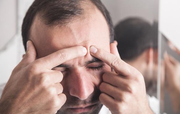 Kaukaski mężczyzna. problemy skórne. wyciskanie pryszczu