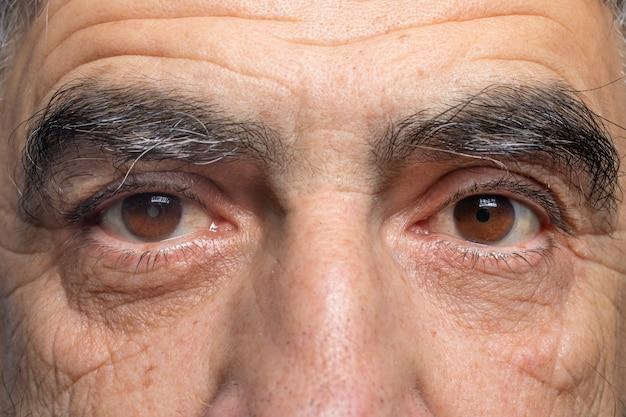 Kaukaski mężczyzna z zaćmą jednego oka i zdrowym drugim okiem