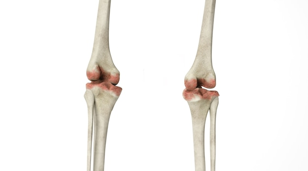 Kino 4d renderowania zmian kostnych w stawach ludzkich na białym tle