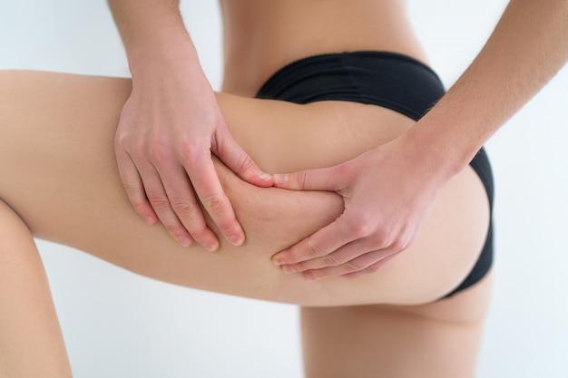 Kobiece nogi z cellulitem. leczenie i profilaktyka problematycznej skóry ciała. zdrowie skóry