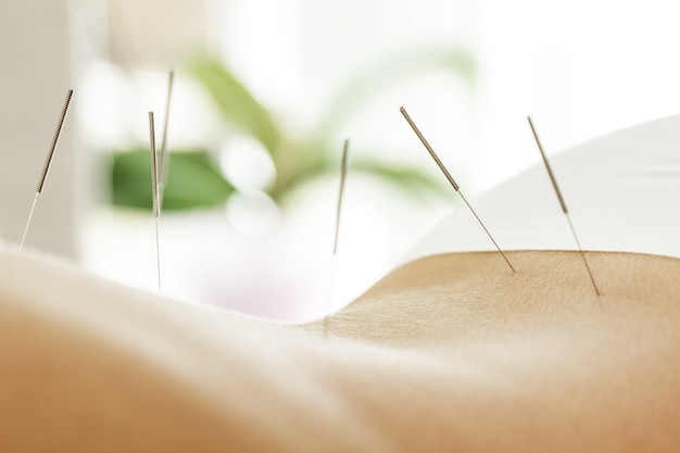 Kobiece plecy ze stalowymi igłami podczas zabiegu terapii akupunkturą