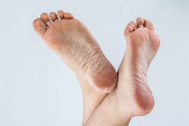 Kobiece szpilki odwodnionej skóry