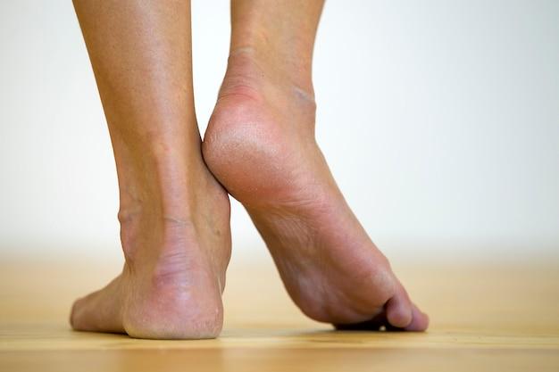 Kobieta bosymi stopami na podłodze. pielęgnacja nóg i leczenie skóry.