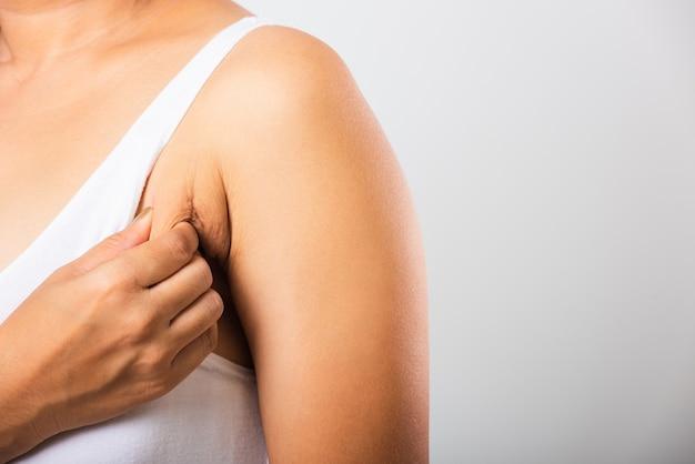 Kobieta ciągnąca skórę pod pachami ma problem z tłuszczem pod pachami i pomarszczoną skórą