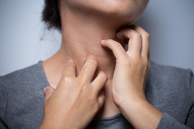Kobieta drapie się po szyi