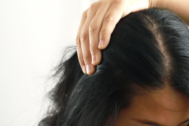 Kobieta kontynuowała badanie przerzedzania skóry głowy.