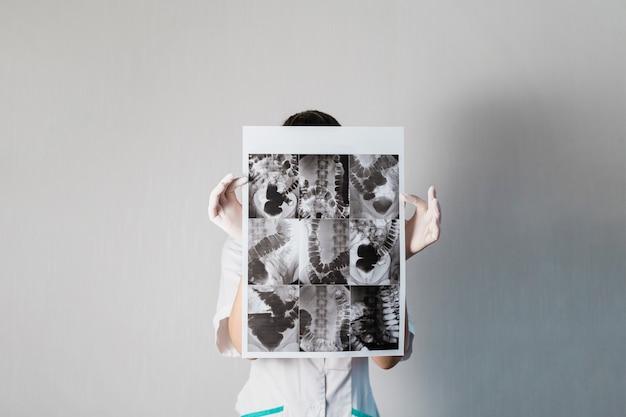 Kobieta lekarz sprawdzający rtg jelita osoby dolichokolonowej. wysokiej jakości zdjęcie