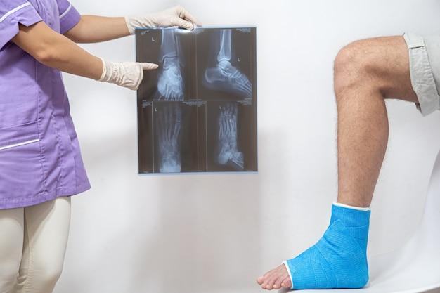 Kobieta lekarz w niebieskiej fartuchu lekarskim sprawdza złamaną nogę i pokazuje pacjentowi płci męskiej projekcję boczną stopy i kostki.