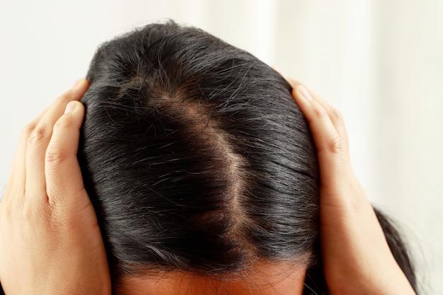 Kobieta ma duże wypadanie włosów, ma problem z włosami i skórą głowy.