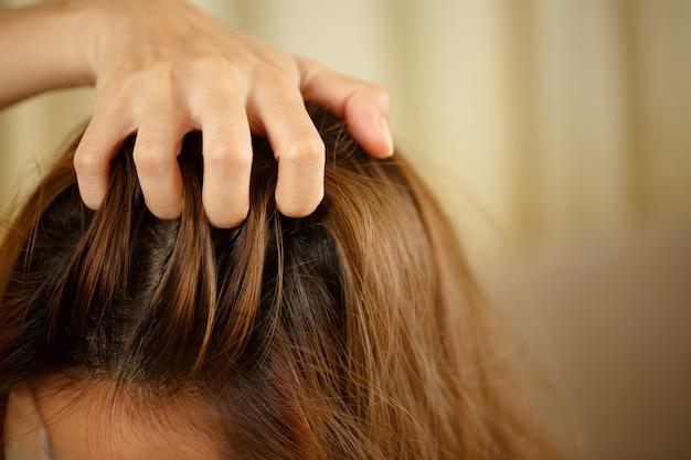 Kobieta ma problemy z włosami i skórą głowy, ma łupież z reakcji alergicznych na szampony. i odżywka do włosów
