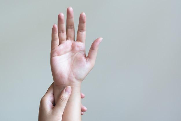 Kobieta masuje rękę bolesne nadgarstka