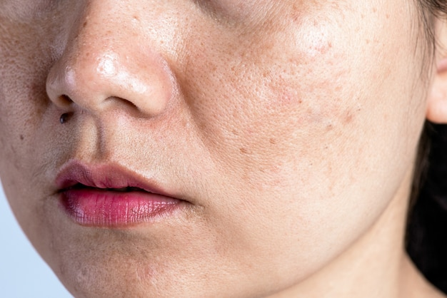 Kobieta o problematycznej skórze, bliznach po trądziku, zmarszczkach i ciemnych plamach.