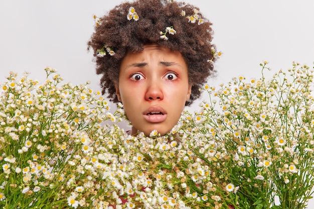Kobieta otoczona rumiankiem ma reakcję alergiczną na polne kwiaty patrzy ma czerwone opuchnięte oczy pozuje na biało