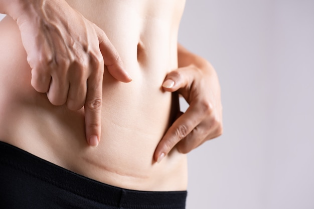 Kobieta pokazano na brzuchu ciemną bliznę z cesarskiego cięcia. opieka zdrowotna .