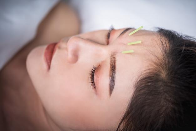 Kobieta przechodzi leczenie akupunktury na głowie