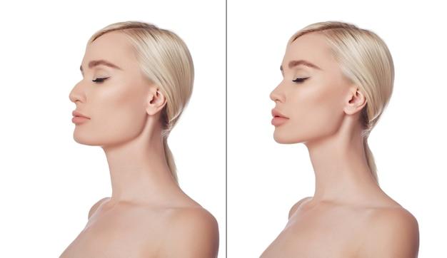 Kobieta przed i po plastyce podbródka. korekcja kosmetyczna podbródka, chirurgia plastyczna, chirurgia redukcyjna, redukcja nosa. medycyna estetyczna. portret pięknej młodej kobiety po operacji plastycznej