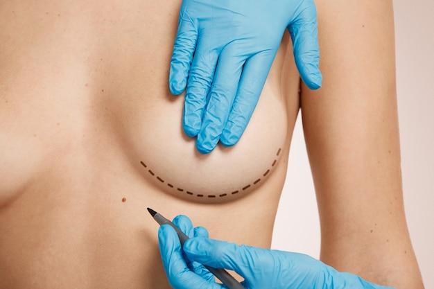 Kobieta przeznaczona do operacji plastycznej
