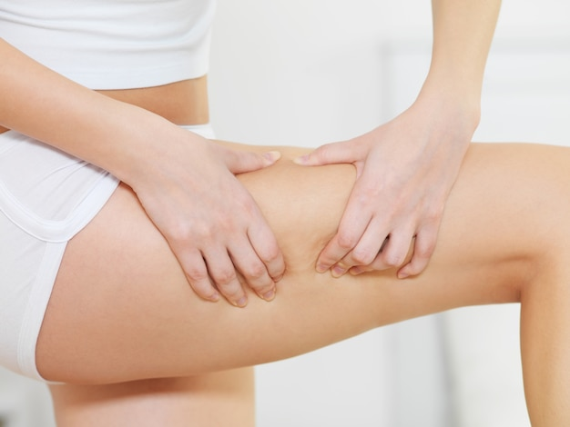 Kobieta ściska cellulit na nogach