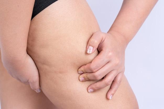 Kobieta trzymająca i odpychająca cellulit na nogach, skórka pomarańczowa. leczenie i usuwanie nadwagi, odkładanie się podskórnej tkanki tłuszczowej