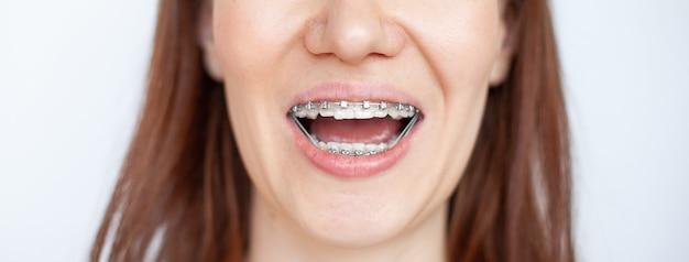 Kobieta uśmiecha się, pokazując białe zęby z aparatami ortodontycznymi. nawet zęby z noszenia aparatów ortodontycznych. pojęcie dentysty i ortodonty.