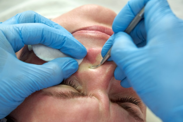 Kobieta używa sztyftu do usuwania trądziku, aby usunąć pryszcze na twarzy, wyciskając pryszcze, tłuste pryszcze