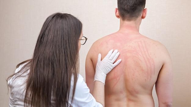 Kobieta w białej szacie bada podrażnione nagie plecy pacjenta