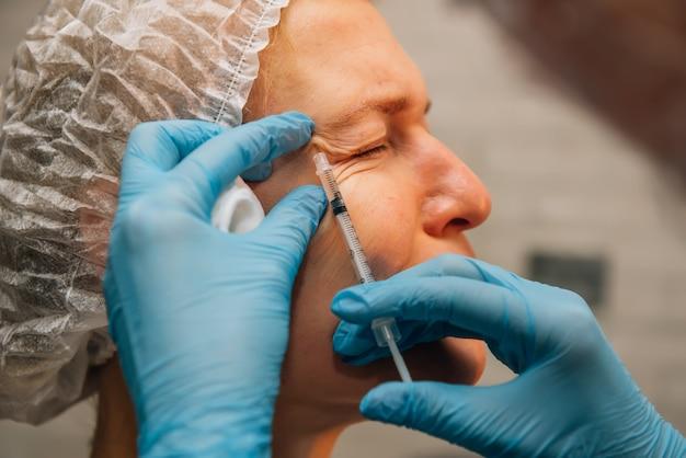 Kobieta w średnim wieku z kurzymi łapkami zmarszczkami wokół oczu w trakcie zabiegu odmładzającego zastrzykami z kwasu hialuronowego