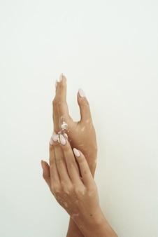 Kobieta wylewa krem do ciała z butelki na rękę z bielactwem