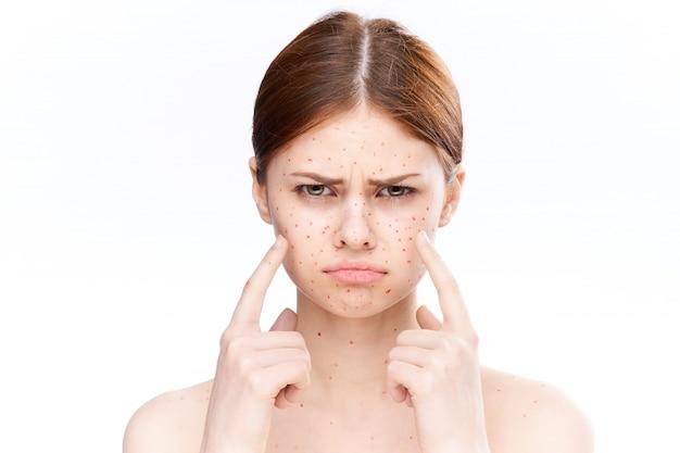 Kobieta wysypka i zapalenie twarzy, trądzik i ospa wietrzna